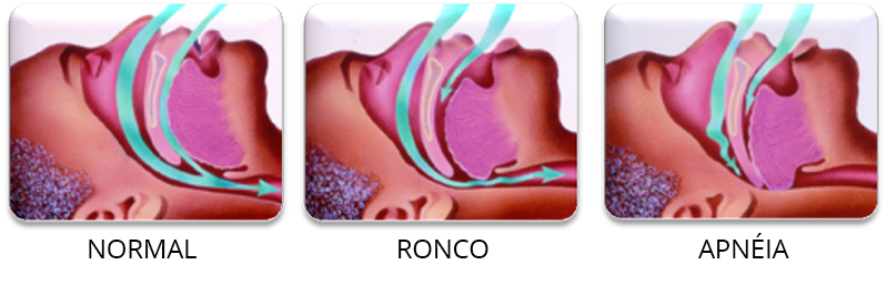 RONCO FASES